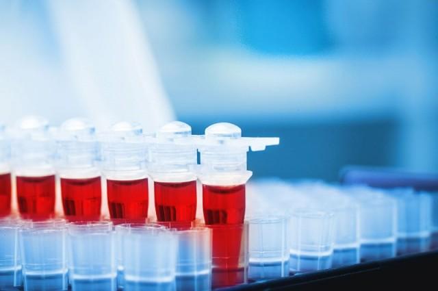 Imunološki zavod propao zbog institucija koje nisu radile svoj posao