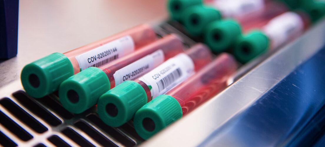 Istraživanje Oxforda: Imunitet na COVID-19 traje najmanje šest mjeseci